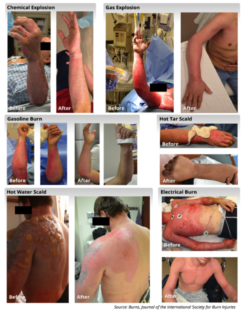 RenovaCare SkinGun™ Sprays Stem Cells to Heal Burns and Wounds