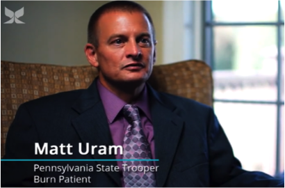State Trooper's Rapid Recovery From Severe Burn After Stem Cell Spray Treatment